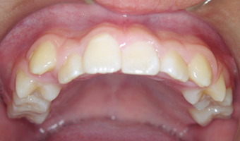 case1 after