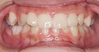 case20 after
