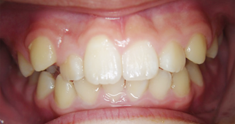 case2 after